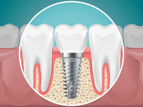 dental-implants-tucson